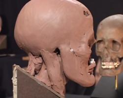 Reconstruction faciale points epaisseur tissus